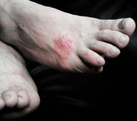 Plísňová onemocnění kůže - dermatomykózy